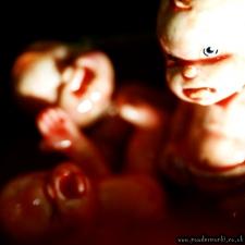 Yolk Babies